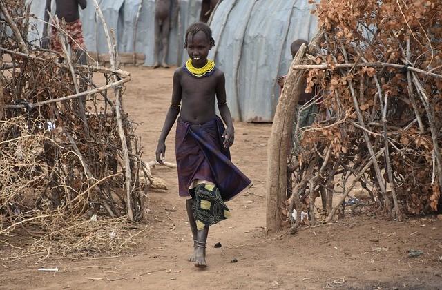 Etiópia enfrenta pior fome em 20 anos